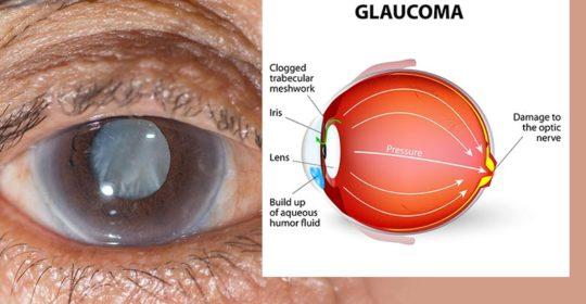 eye-disease-glaucoma